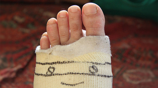 Foot Fracture Surgery