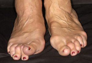 womans-feet-with-rheumatoid-arthritis